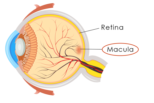 Age Related Macular Degeneration Amd Eye Care Specialists Cape Girardeau Mo