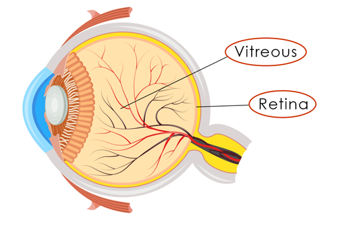 Retinal Detachment diagram