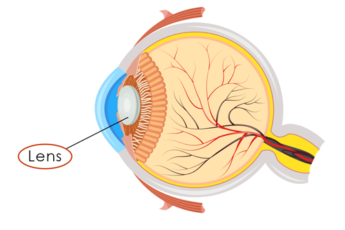 Cataract eye diagram